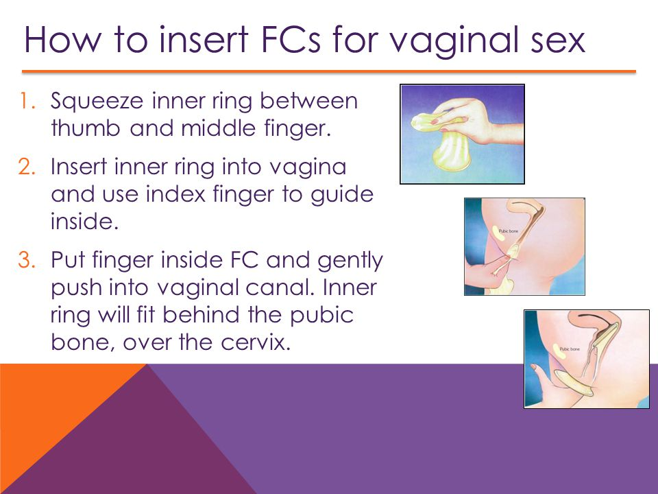 How to insert FCs for vaginal sex 1.Squeeze inner ring between thumb and middle finger.