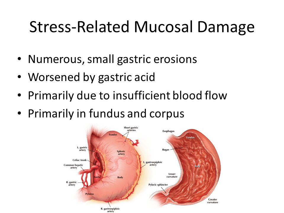 Stress-Related Mucosal Damage Numerous, small gastric erosions Worsened by gastric acid Primarily due to insufficient blood flow Primarily in fundus and corpus