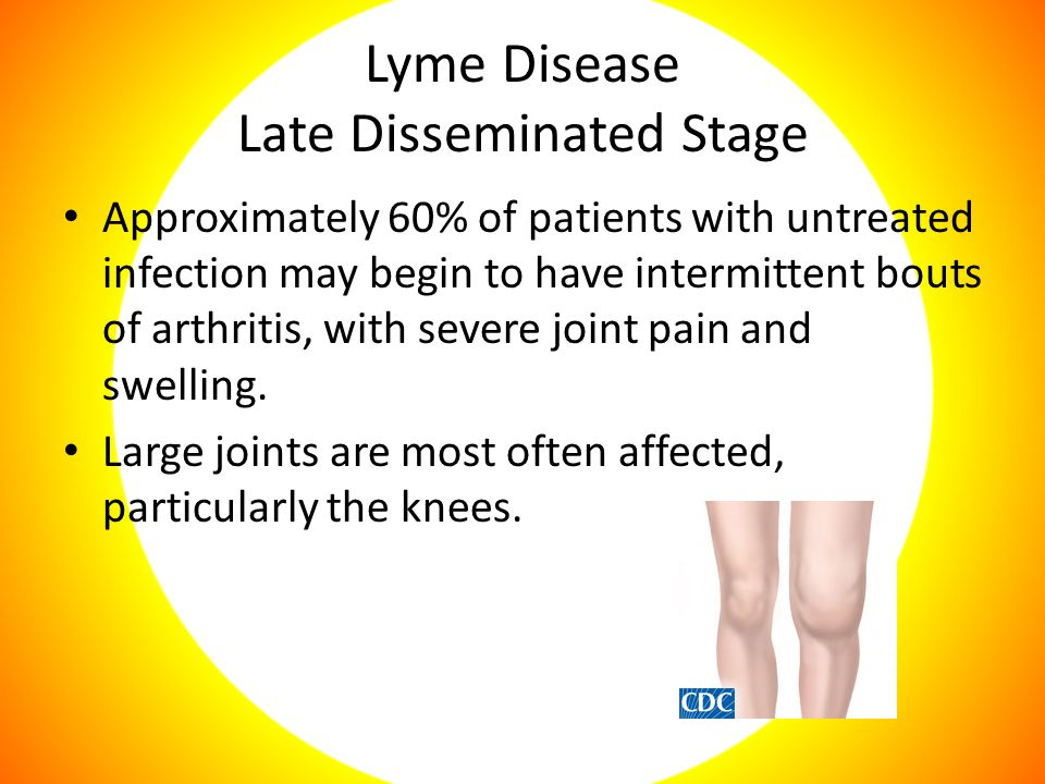 Lyme Disease Late Disseminated Stage Approximately 60% of patients with untreated infection may begin to have intermittent bouts of arthritis, with severe joint pain and swelling.