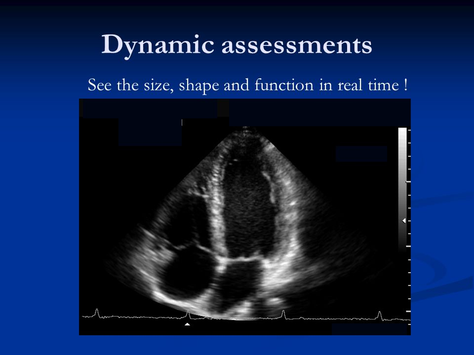 Dynamic assessments See the size, shape and function in real time !