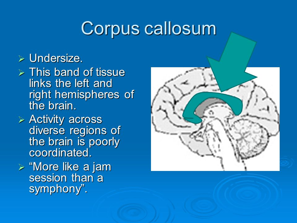 Corpus callosum  Undersize.  This band of tissue links the left and right hemispheres of the brain.  Activity across diverse regions of the brain i