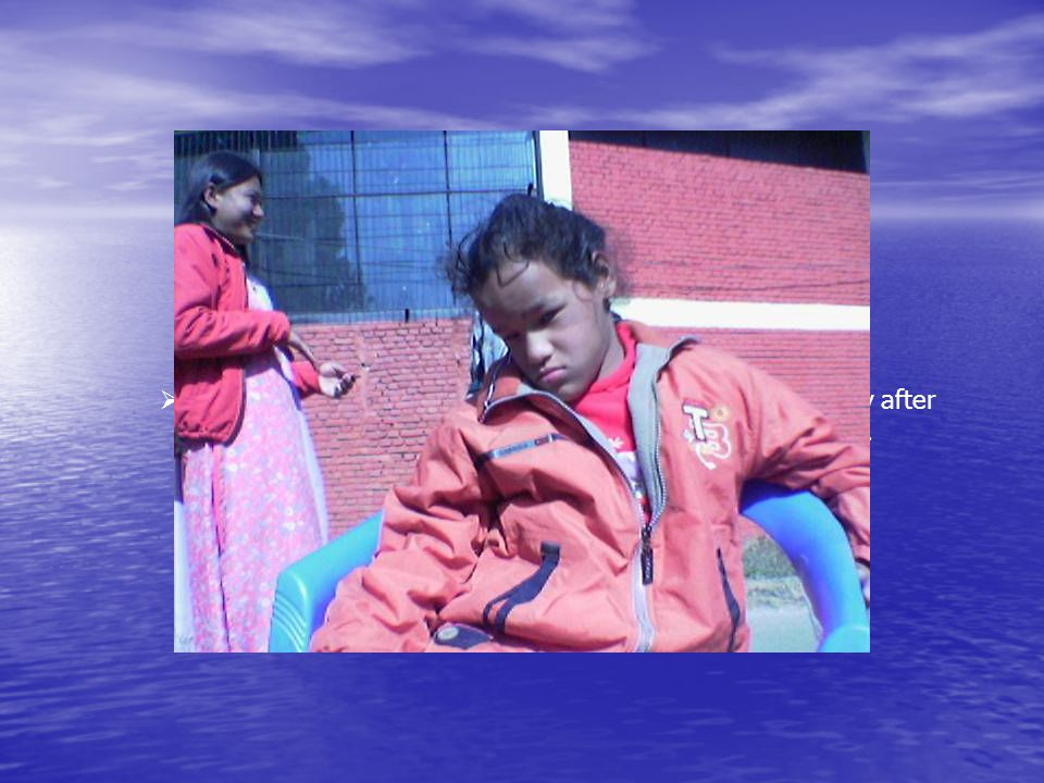  Ms. Shraddha Shahi, a girl of 11 years has started mobility after getting physiotherapy service with mobility training..