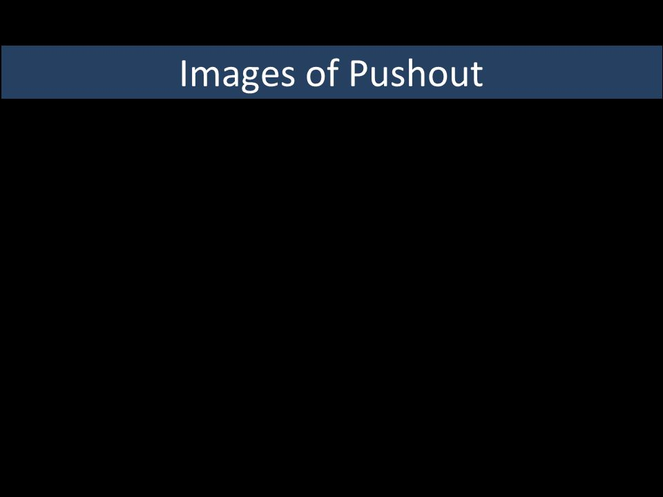 Images of Pushout