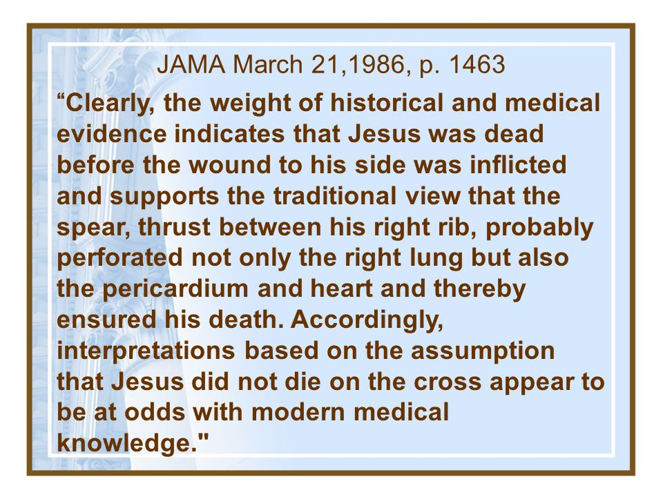Fact # 1 Jesus ' Death By Crucifixion 4.Modern medical authorities have verified his death.