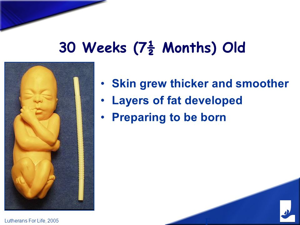 F Lutherans For Life, 2005 30 Weeks (7½ Months) Old Skin grew thicker and smoother Layers of fat developed Preparing to be born
