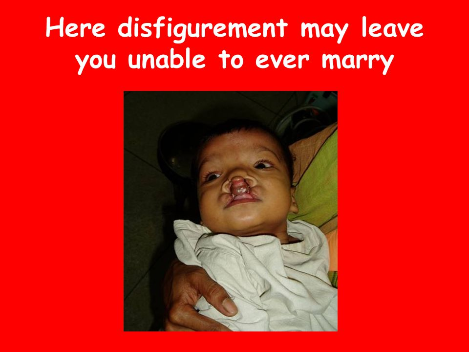 Here disfigurement may leave you unable to ever marry