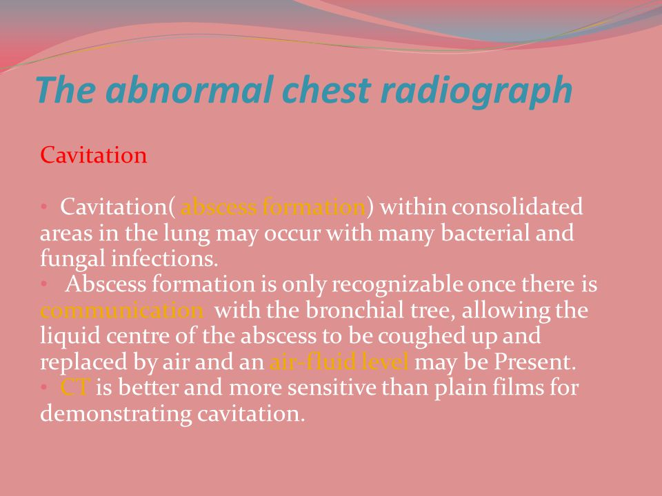 The abnormal chest radiograph Cavitation Cavitation( abscess formation) within consolidated areas in the lung may occur with many bacterial and fungal infections.