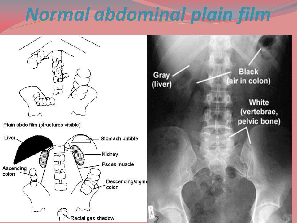 Normal abdominal plain film