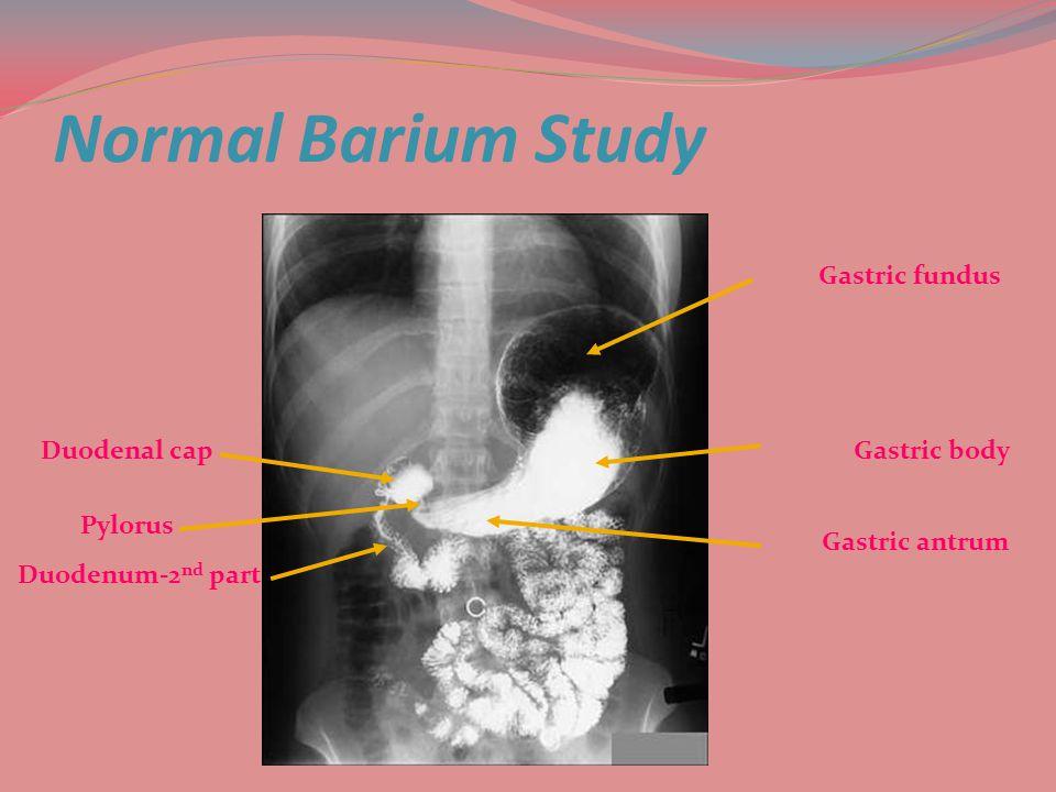Normal Barium Study Gastric fundus Gastric body Gastric antrum Pylorus Duodenal cap Duodenum-2 nd part