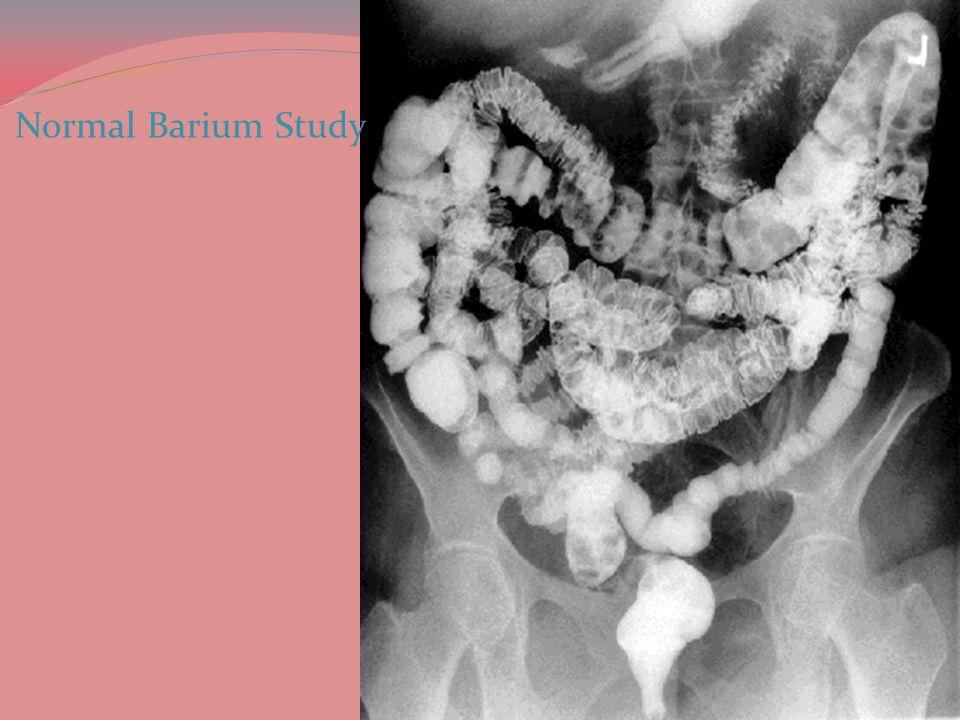 Normal Barium Study