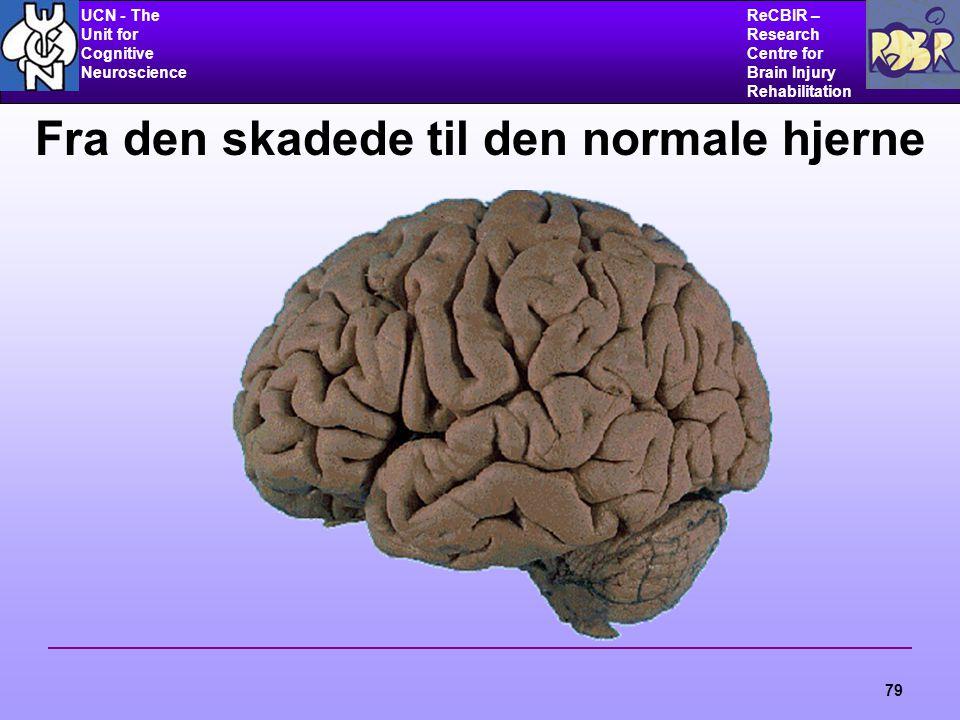 UCN - The Unit for Cognitive Neuroscience ReCBIR – Research Centre for Brain Injury Rehabilitation 79 Fra den skadede til den normale hjerne