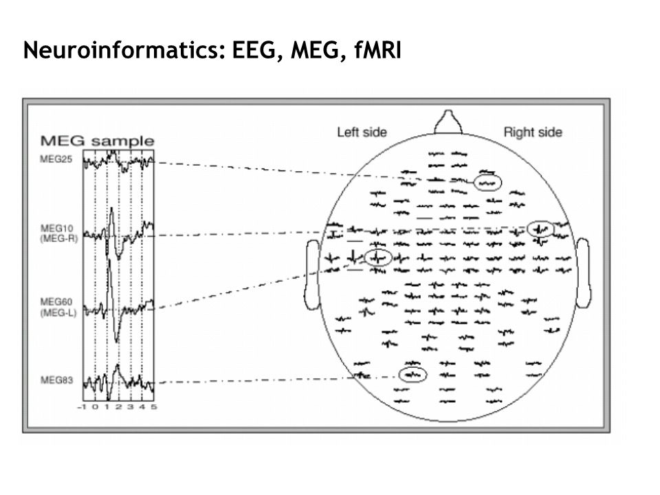 Neuroinformatics: EEG, MEG, fMRI