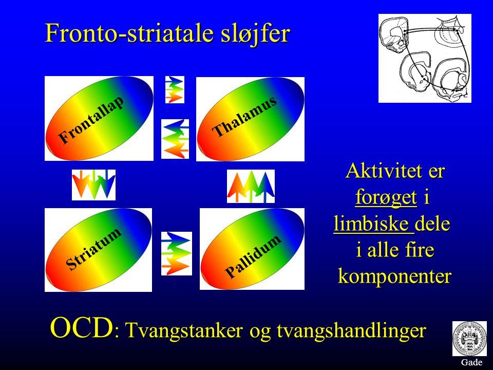 Gade Frontallap Thalamus Striatum Pallidum Fronto-striatale sløjfer Aktivitet er forøget i limbiske dele i alle fire komponenter OCD : Tvangstanker og
