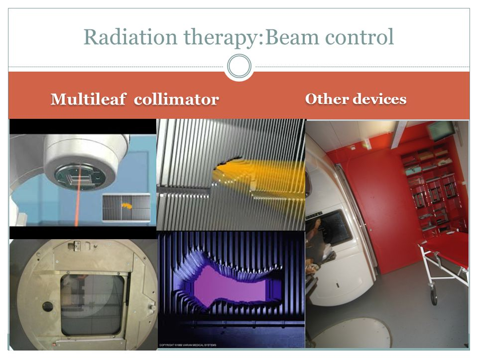 Multileaf collimator Other devices Radiation therapy:Beam control