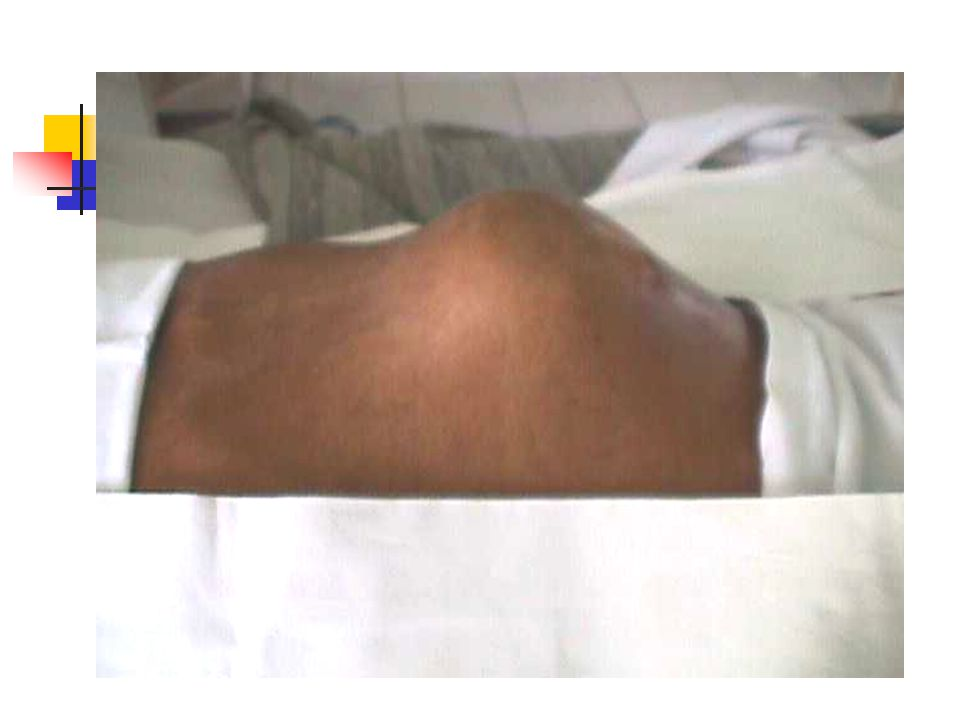 Diagnosis Klinik anamnesis: hematuri – intermittent - painless fisik: massa di abdomen palpasi bimanual dengan narkose umum Laboratorium: BTA, sitologi urine, flowsitometri Pencitraan: IVP – USG – CT scan – MRI Sistoskopi - biopsi