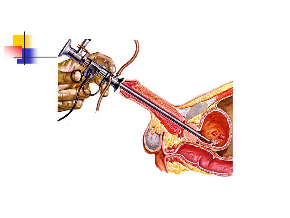 Terapi TUR Buli-buli dengan staging (T) Terapi selanjutnya tergantung stadium: radikal sistektomi radiasi eksterna sitostatika (CisCA) instilasi dengan sitostatika / imunoterapi