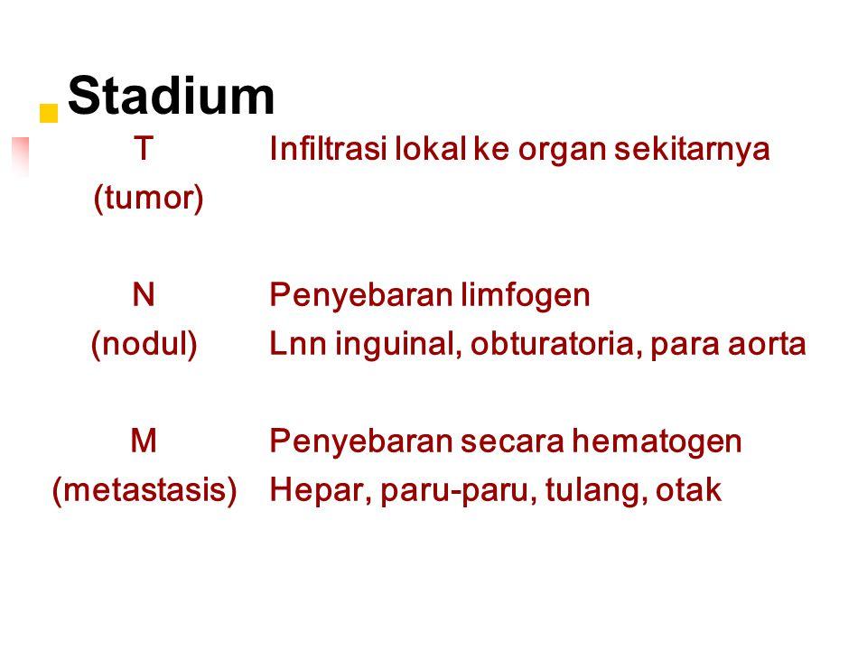 Stadium T (tumor) Infiltrasi lokal ke organ sekitarnya N (nodul) Penyebaran limfogen Lnn inguinal, obturatoria, para aorta M (metastasis) Penyebaran secara hematogen Hepar, paru-paru, tulang, otak