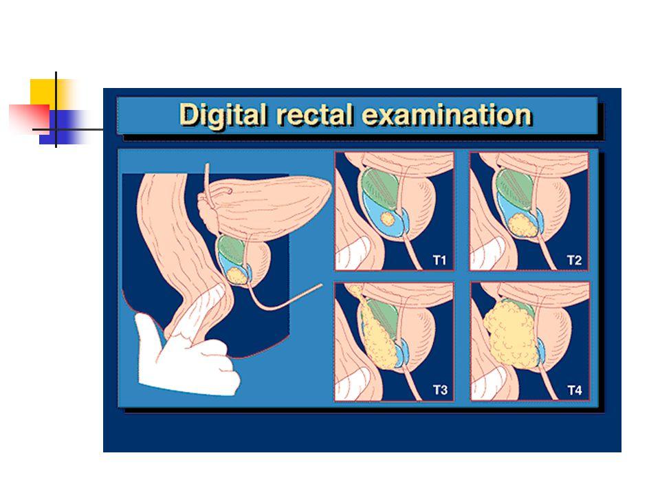 Pencitraan : TRUS (transrektal ultrasonografi) Bone scan Bone survey MRI Biopsi transrektal (tuntunan USG)