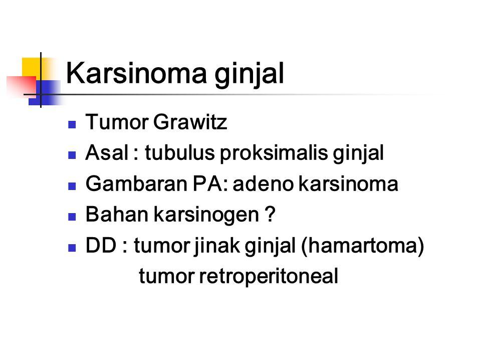 Karsinoma ginjal Tumor Grawitz Asal : tubulus proksimalis ginjal Gambaran PA: adeno karsinoma Bahan karsinogen .