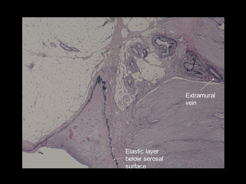 Extramural vein Elastic layer below serosal surface