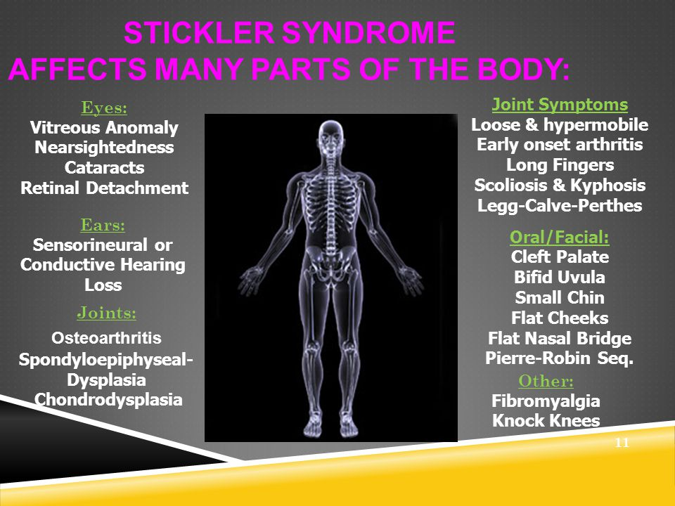 WHAT IS STICKLER SYNDROME.