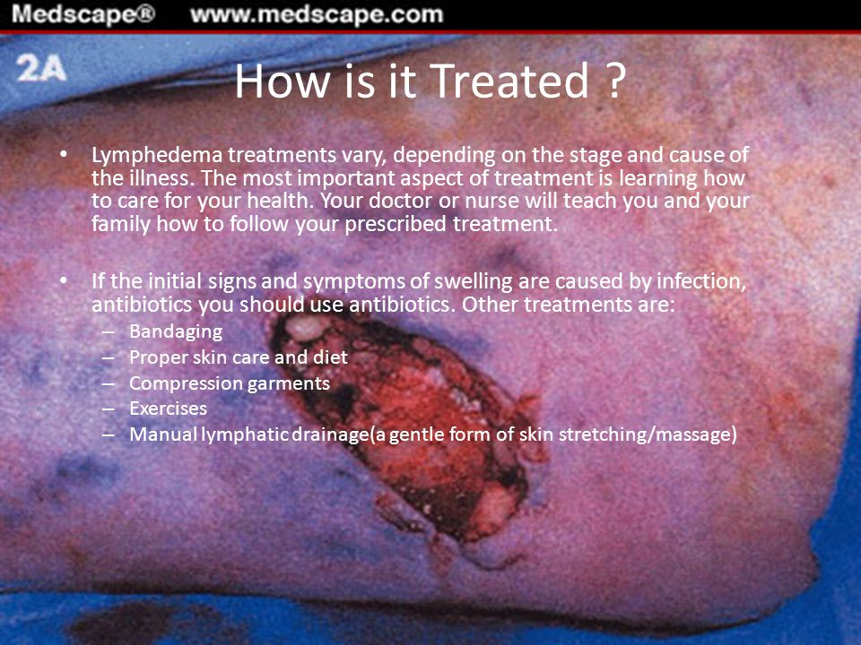 What is the Prognosis .It isn t always easy to predict whether lymphedema will last.