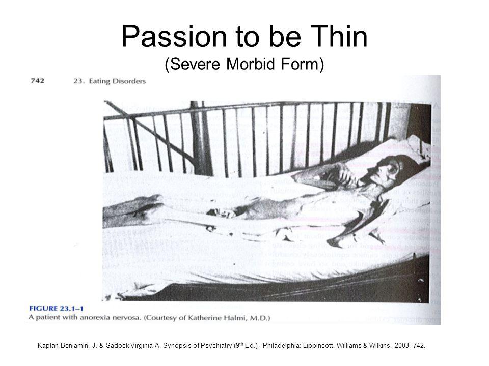 Passion to be Thin (Severe Morbid Form) Kaplan Benjamin, J. & Sadock Virginia A. Synopsis of Psychiatry (9 th Ed.). Philadelphia: Lippincott, Williams