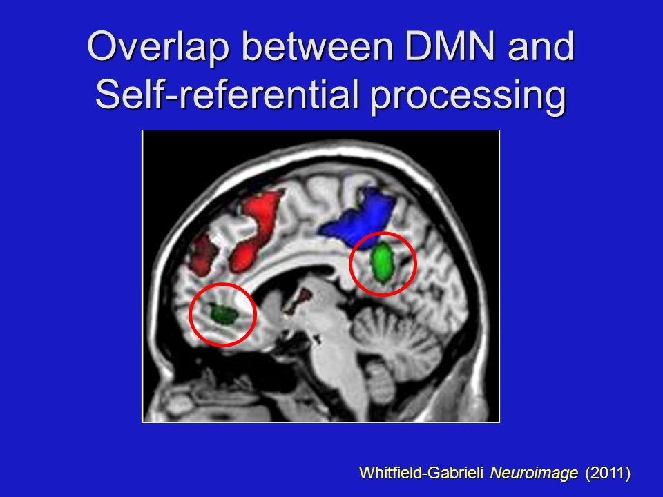 Overlap between DMN and Self-referential processing Whitfield-Gabrieli Neuroimage (2011)