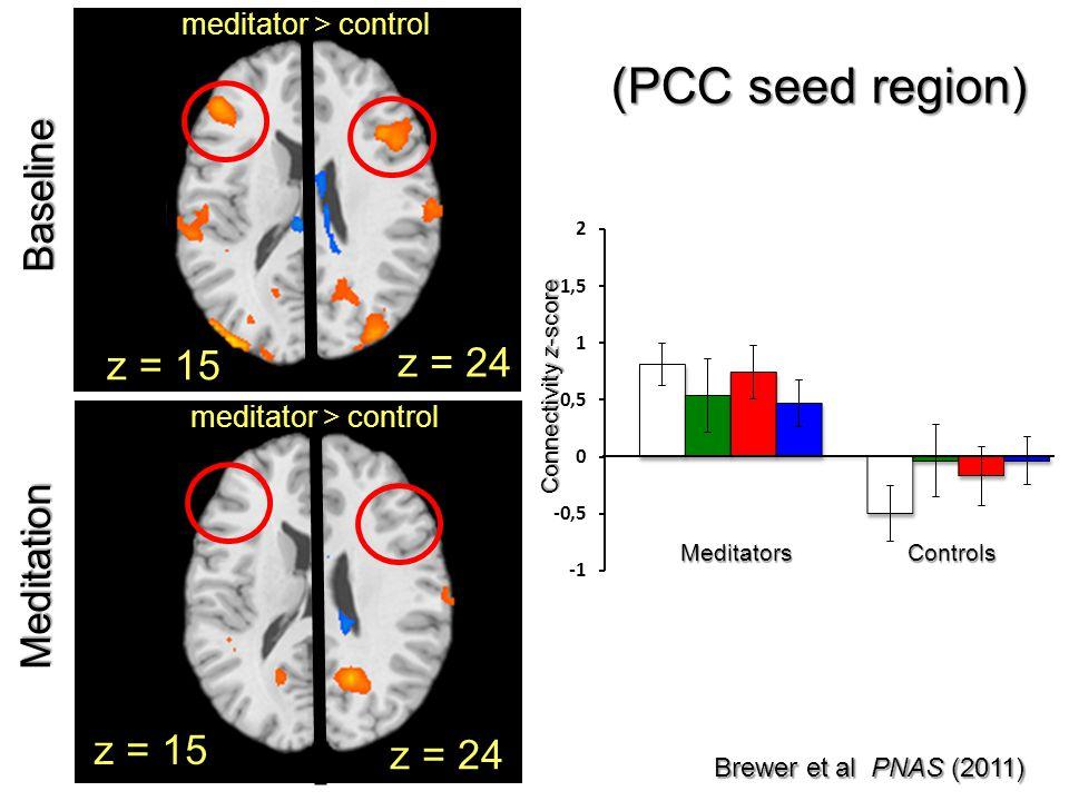 Connectivity z-score MeditatorsControls Brewer et al PNAS (2011) z = 24 z = 15 meditator > control Baseline z = 24 meditator > control z = 15 Meditati