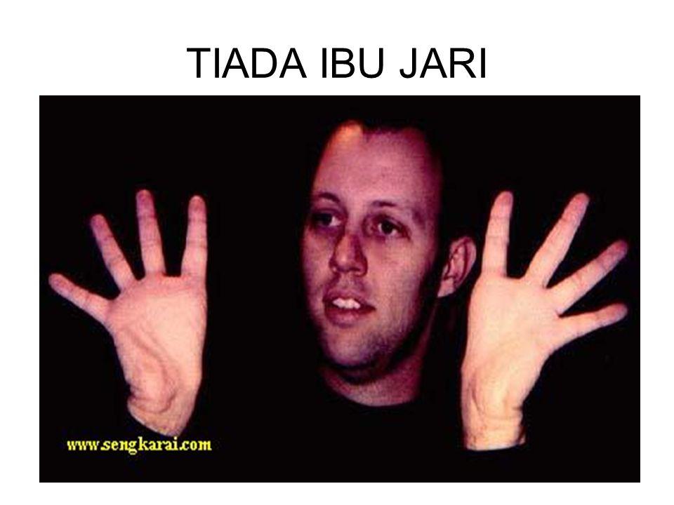 TIADA IBU JARI