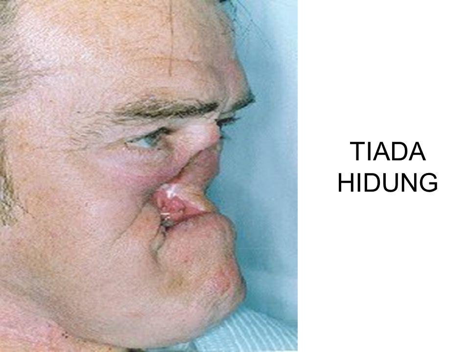 TIADA HIDUNG
