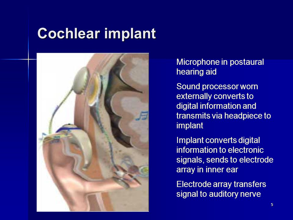 5 Cochlear implant Microphone in postaural hearing aid Sound processor worn externally converts to digital information and transmits via headpiece to