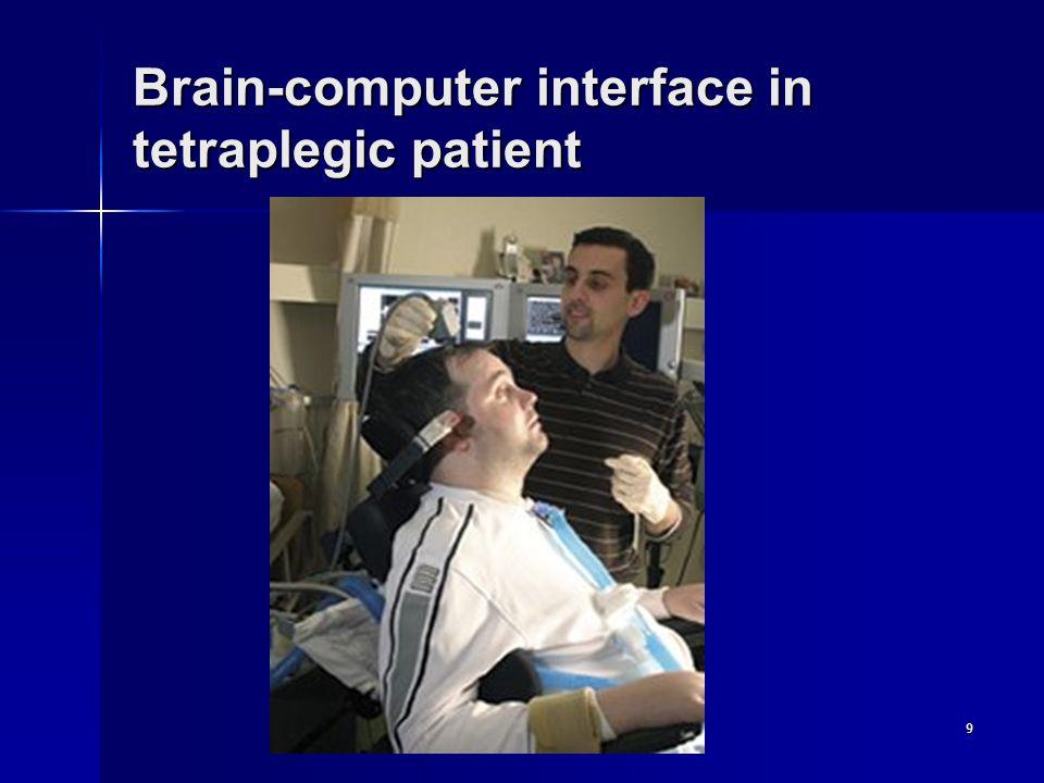 9 Brain-computer interface in tetraplegic patient
