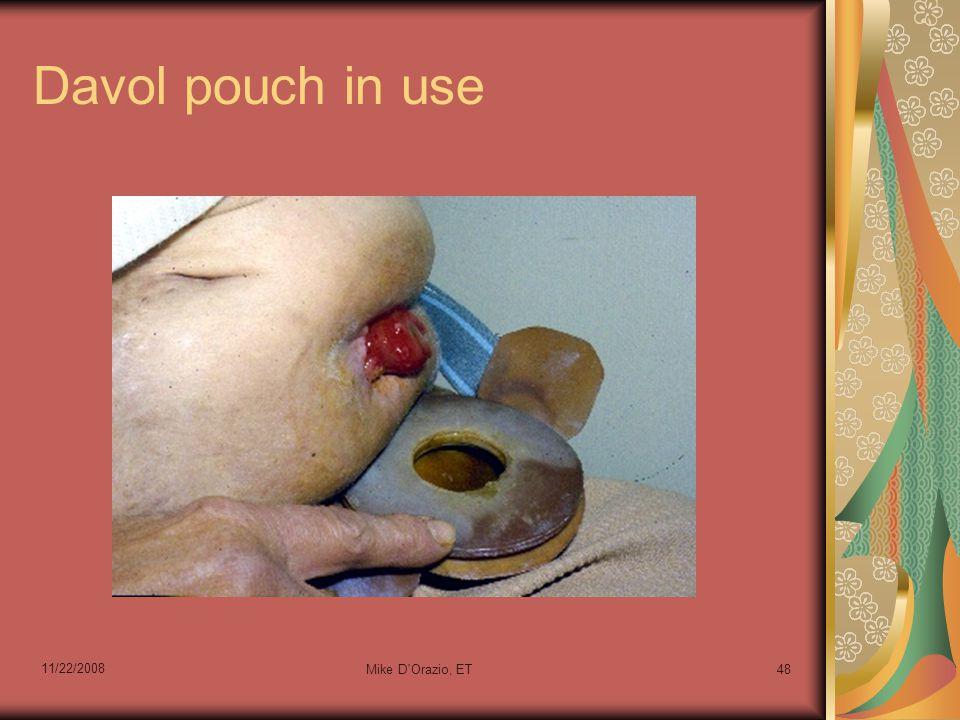 Davol pouch in use 11/22/2008 Mike D'Orazio, ET48