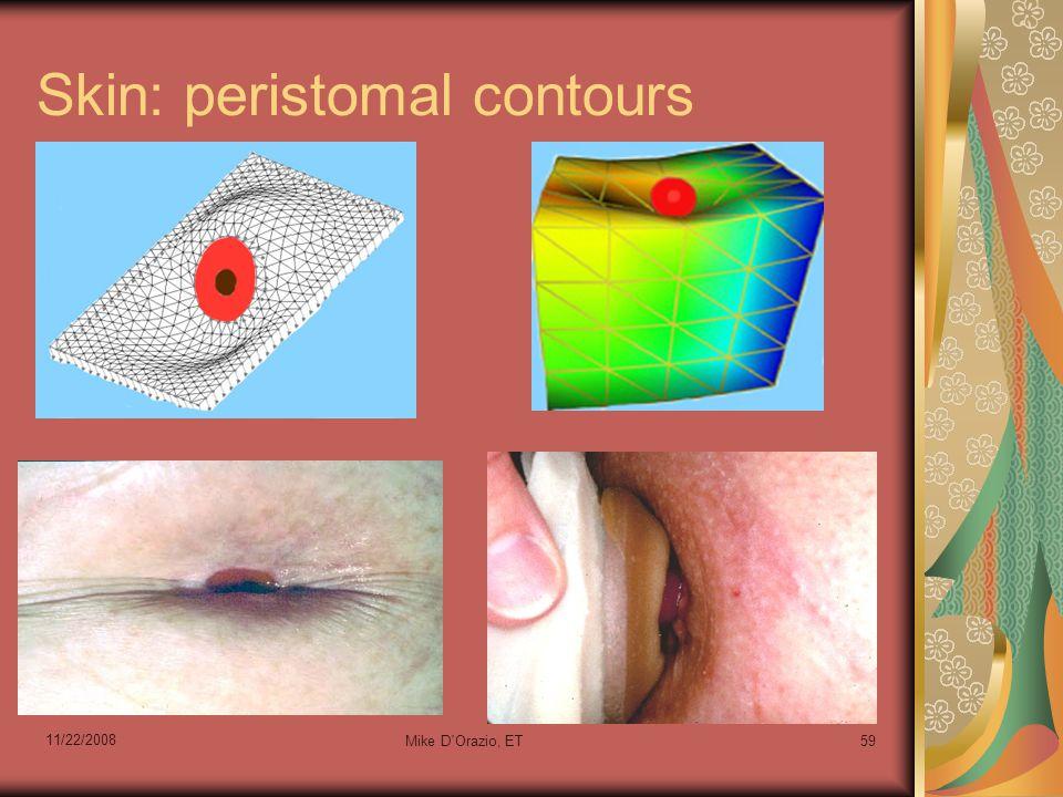 11/22/2008 Mike D'Orazio, ET59 Skin: peristomal contours