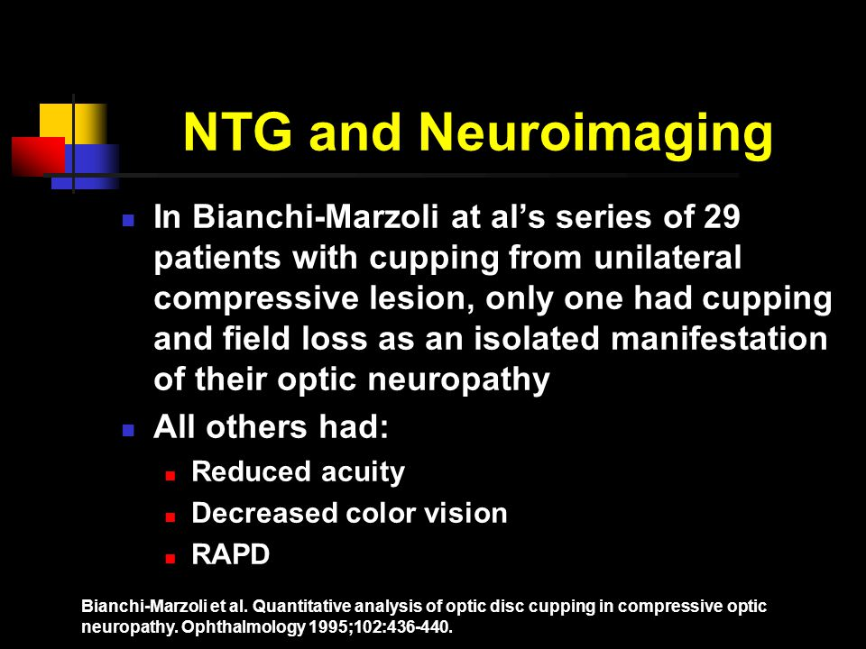 NTG and Neuroimaging In Bianchi-Marzoli at al's series of 29 patients with cupping from unilateral compressive lesion, only one had cupping and field loss as an isolated manifestation of their optic neuropathy All others had: Reduced acuity Decreased color vision RAPD Bianchi-Marzoli et al.