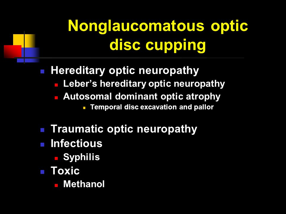 Nonglaucomatous optic disc cupping Hereditary optic neuropathy Leber's hereditary optic neuropathy Autosomal dominant optic atrophy Temporal disc excavation and pallor Traumatic optic neuropathy Infectious Syphilis Toxic Methanol