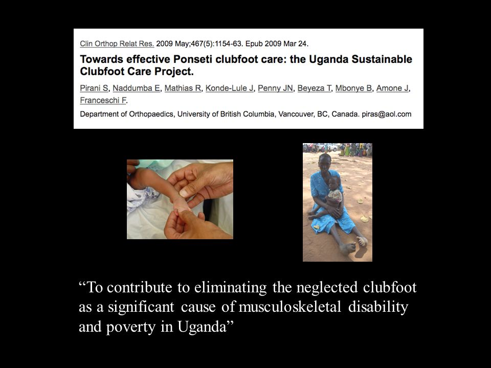 To contribute to eliminating the neglected clubfoot as a significant cause of musculoskeletal disability and poverty in Uganda