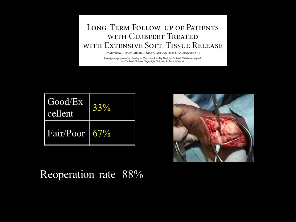 Good/Ex cellent 33% Fair/Poor67% Reoperation rate 88%