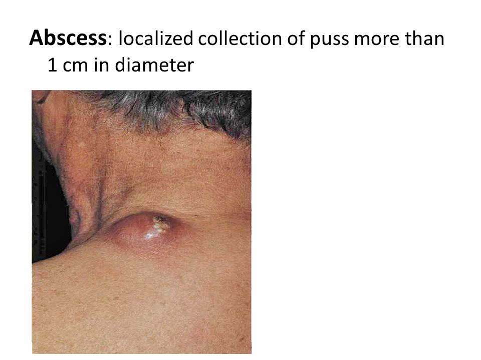 Wheal: elevated, transitory, compressible papule or plaque produced by dermal edema