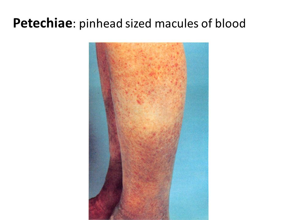 Purpura : larger macule or papule of blood