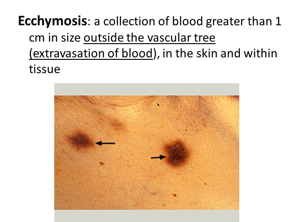 Haematoma : is swelling from gross bleeding