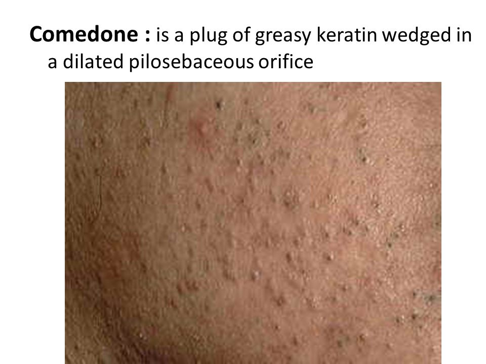 Comedone : is a plug of greasy keratin wedged in a dilated pilosebaceous orifice