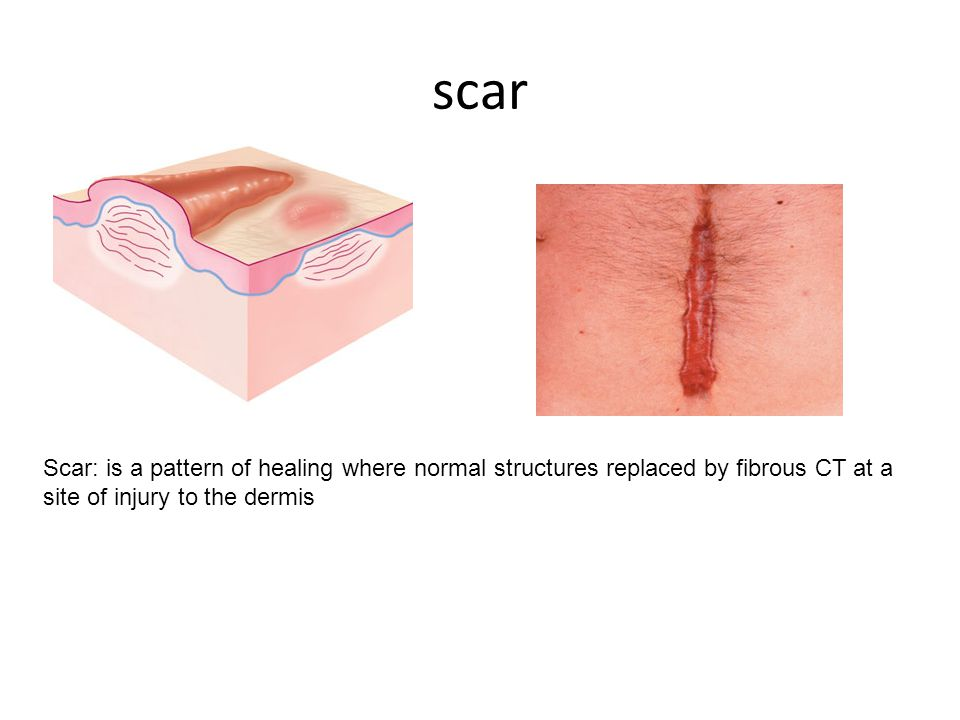 1- Hypertrophic or 2- atrophic scar. 3- Sclerotic or hard Scar