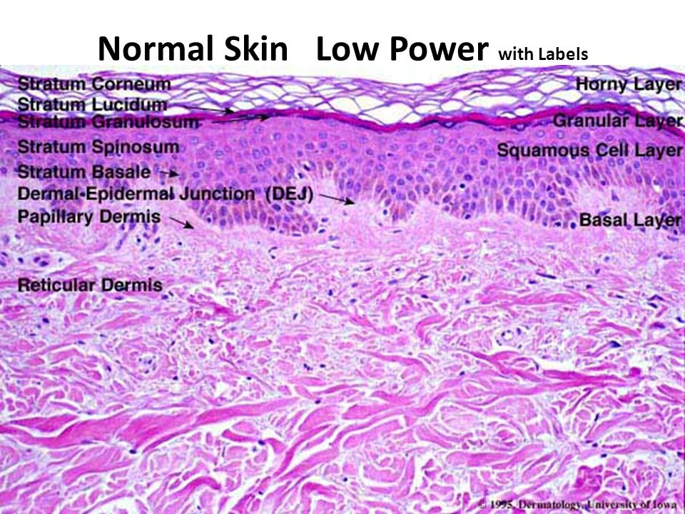skin can be classified as thick or thin: 1) Thick skin - covers palms and soles, - has sweat glands, but lacks hair follicles, arrector pili muscles, and sebaceous glands 2) Thin skin - covers most of the rest of the body - contains sweat glands & hair follicles, arrector pili muscles, and sebaceous glands.