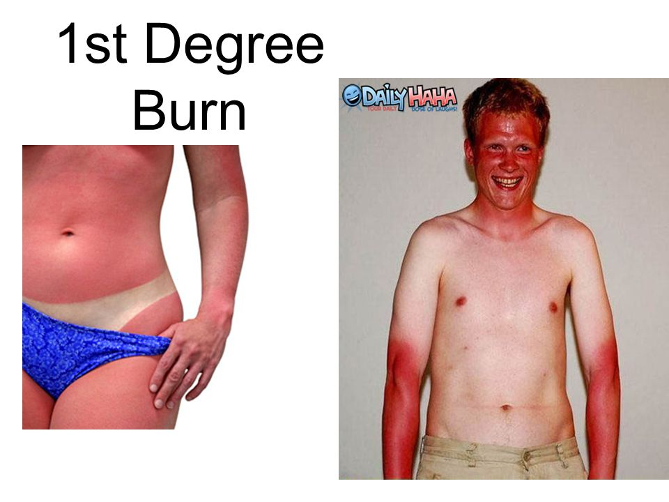 1st Degree Burn