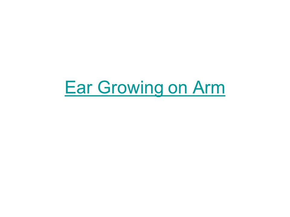Ear Growing on Arm
