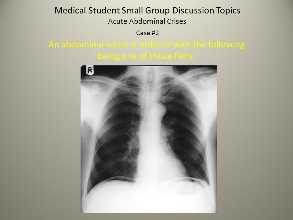 Medical Student Small Group Discussion Topics Acute Abdominal Crises Case #2 An abdominal series is ordered with the following being one of those film