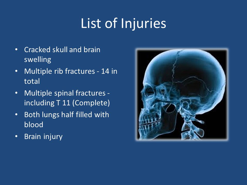 List of Injuries Cracked skull and brain swelling Multiple rib fractures - 14 in total Multiple spinal fractures - including T 11 (Complete) Both lungs half filled with blood Brain injury