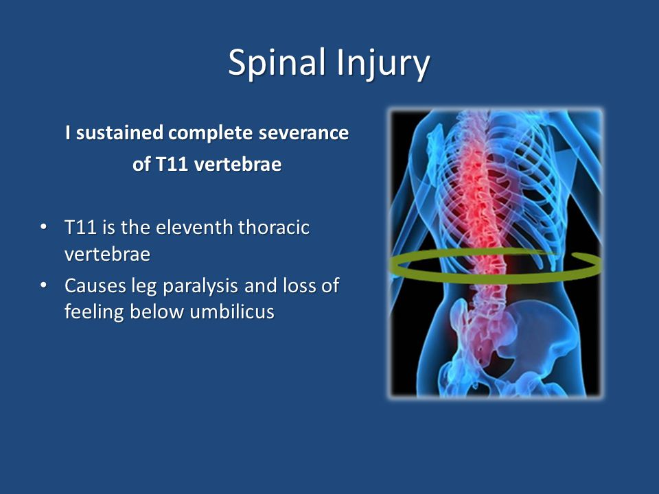 Spinal Injury I sustained complete severance of T11 vertebrae T11 is the eleventh thoracic vertebrae T11 is the eleventh thoracic vertebrae Causes leg paralysis and loss of feeling below umbilicus Causes leg paralysis and loss of feeling below umbilicus